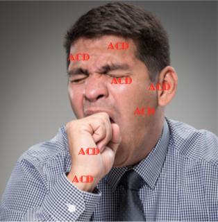 ACD Measles